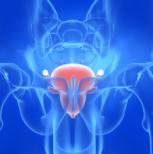 """新型药物""""峥嵘渐显"""",前列腺癌精准医疗有望崛起"""
