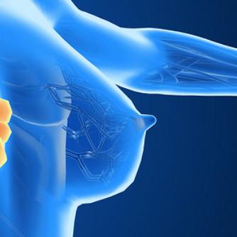 辉瑞哌柏西利PENELOPE-B研究再失利,乳癌早期辅助治疗连遭滑铁卢