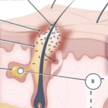 福瑞他恩获FDA批准II期临床,AR拮抗剂领跑脱发市场